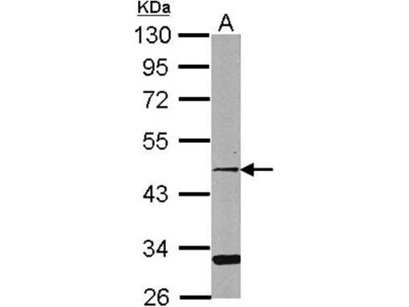 Western Blotting (WB) image for anti-CCRL2/CRAM-A/B (N-Term) antibody (ABIN4259080)