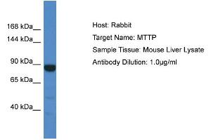 Image no. 1 for anti-Microsomal Triglyceride Transfer Protein (MTTP) (C-Term) antibody (ABIN2773828)