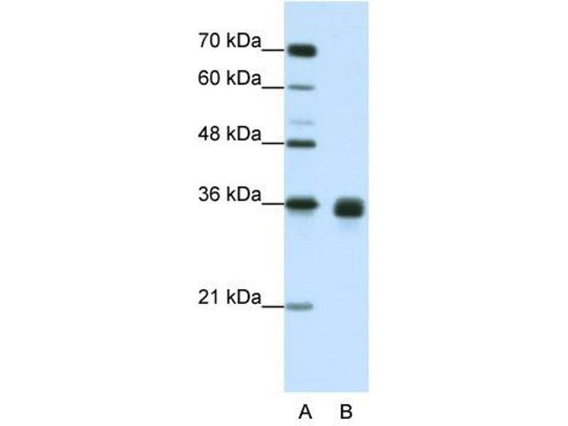Western Blotting (WB) image for anti-Wingless-Type MMTV Integration Site Family, Member 2B (WNT2B) (Middle Region) antibody (ABIN629639)