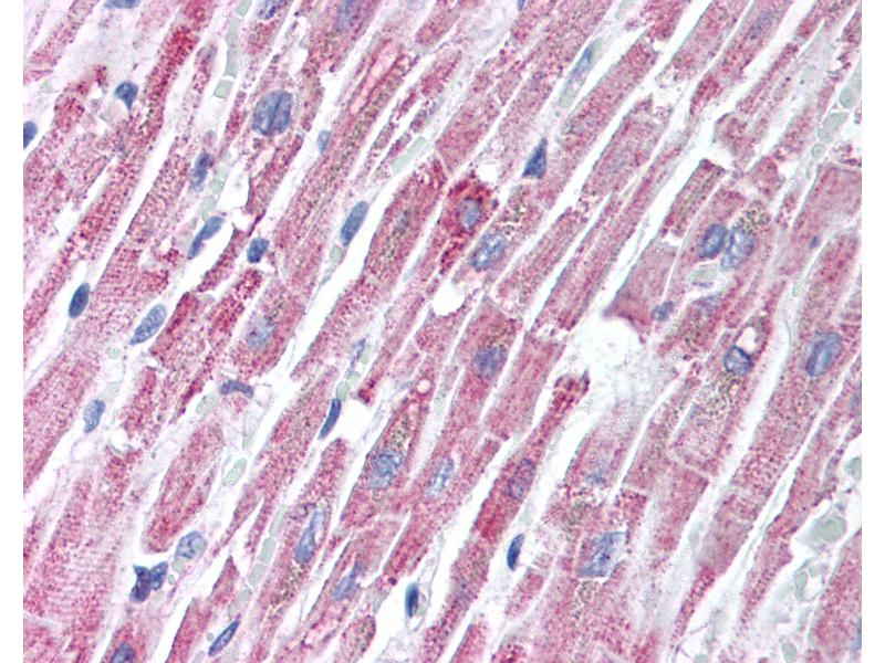 Immunohistochemistry (IHC) image for anti-Toll-Interleukin 1 Receptor (TIR) Domain Containing Adaptor Protein (TIRAP) (C-Term) antibody (ABIN213995)