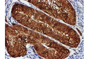 Image no. 8 for anti-Chromosome 1 Open Reading Frame 50 (C1ORF50) antibody (ABIN1497033)