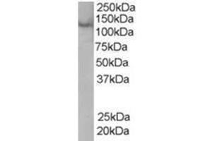 image for anti-Zinc Finger, FYVE Domain Containing 20 (ZFYVE20) (C-Term) antibody (ABIN374348)