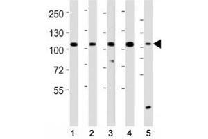 Image no. 2 for anti-Leucine-Rich Repeat Containing G Protein-Coupled Receptor 5 (LGR5) (AA 689-719) antibody (ABIN3028790)