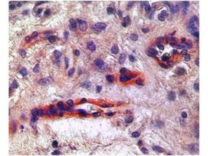 Immunohistochemistry (IHC) image for anti-Kinase insert Domain Receptor (A Type III Receptor tyrosine Kinase) (KDR) (N-Term) antibody (ABIN2792307)