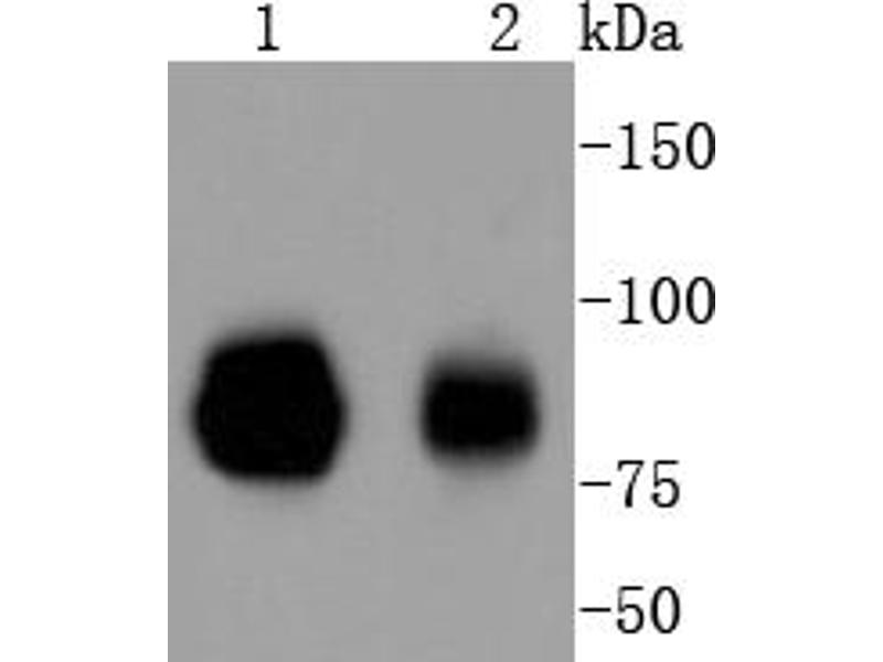 Western Blotting (WB) image for anti-Signal Transducer and Activator of Transcription 1, 91kDa (STAT1) antibody (ABIN5557529)