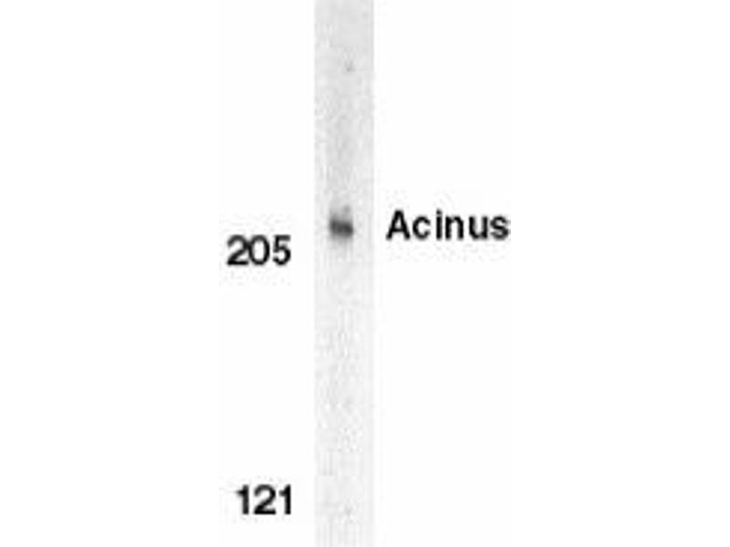 Western Blotting (WB) image for anti-ACIN1 antibody (Apoptotic Chromatin Condensation Inducer 1) (ABIN499197)