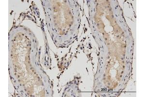 Image no. 4 for anti-Chromosome 1open Reading Frame 89 (C1orf89) (AA 1-258) antibody (ABIN528942)