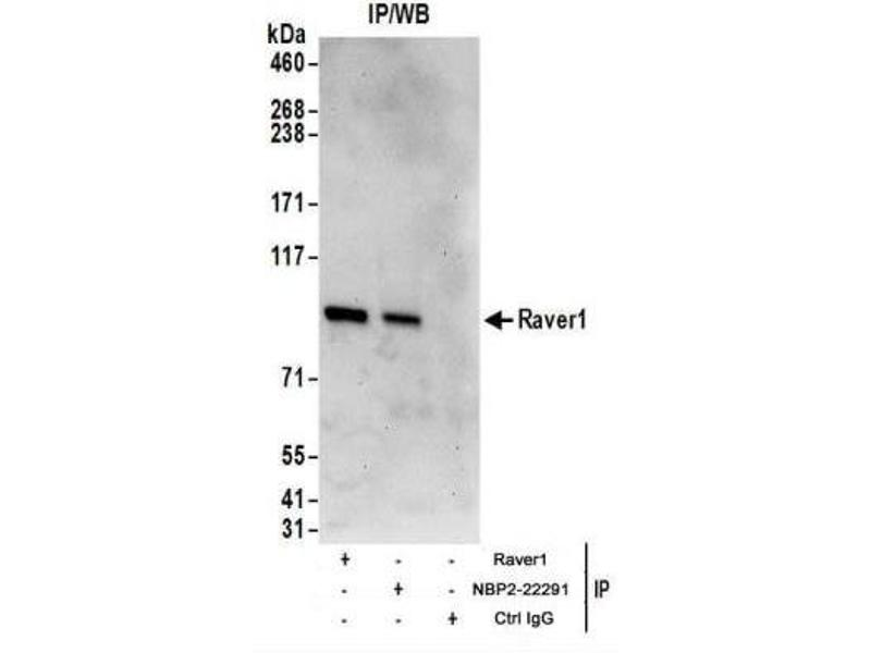 Immunoprecipitation (IP) image for anti-Ribonucleoprotein, PTB-Binding 1 (RAVER1) (AA 556-606) 抗体 (ABIN4349463)