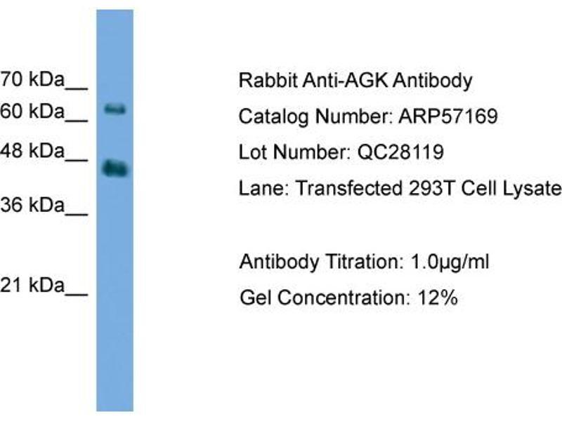 Western Blotting (WB) image for anti-Acylglycerol Kinase (AGK) (N-Term) antibody (ABIN2787097)