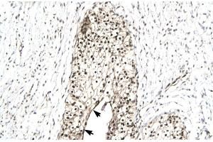 Image no. 5 for anti-RuvB-Like 2 (E. Coli) (RUVBL2) (N-Term) antibody (ABIN2779600)