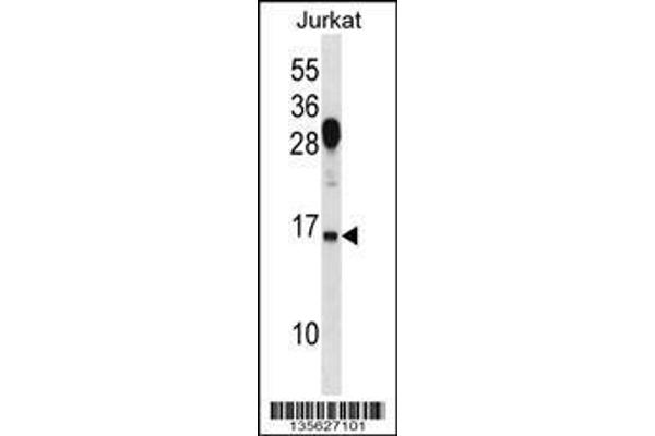 RHOG Antibody (C-term)  western blot analysis in Jurkat cell line lysates (35ug/lane).This demonstrates the RHOG antibody detected the RHOG protein (arrow).
