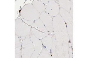 Immunohistochemistry (Paraffin-embedded Sections) (IHC (p)) image for anti-Glucose-6-Phosphate Dehydrogenase (G6PD) antibody (ABIN4314534)