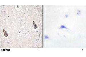 Image no. 1 for anti-Adenylate Cyclase 5 (ADCY5) antibody (ABIN5572035)