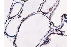 image for anti-SQSTM1 antibody (Sequestosome 1) (ABIN1499989)