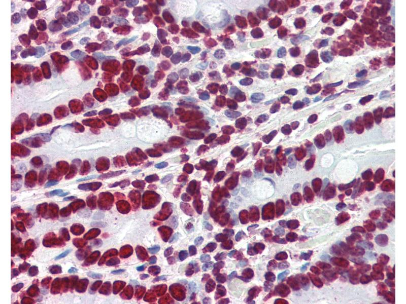 Immunohistochemistry (IHC) image for anti-High Mobility Group AT-Hook 1 (HMGA1) (AA 12-23) antibody (ABIN364402)