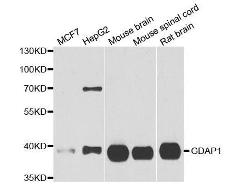 Western Blotting (WB) image for anti-Ganglioside-Induced Differentiation-Associated Protein 1 (GDAP1) antibody (ABIN6141037)