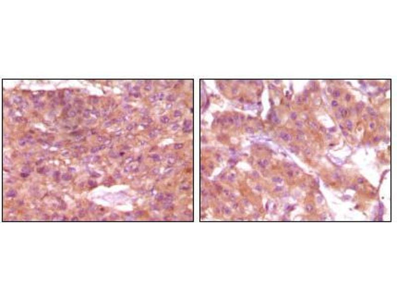 Immunohistochemistry (IHC) image for anti-Steroid Receptor RNA Activator 1 (SRA1) antibody (ABIN969416)