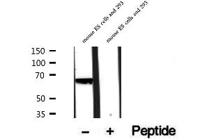 Image no. 2 for anti-PHD Finger Protein 19 (PHF19) antibody (ABIN6264174)
