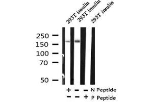 Image no. 1 for anti-Insulin Receptor Substrate 1 (IRS1) (pSer318) antibody (ABIN6268052)