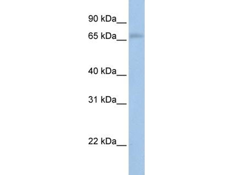 Western Blotting (WB) image for anti-MAP3K2 antibody (Mitogen-Activated Protein Kinase Kinase Kinase 2) (N-Term) (ABIN503027)