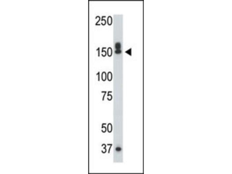 Western Blotting (WB) image for anti-Death-Associated Protein Kinase 1 (DAPK1) (C-Term) antibody (ABIN4304242)