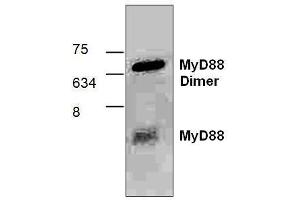 Western Blotting (WB) image for anti-Myeloid Differentiation Primary Response Gene (88) (MYD88) antibody (ABIN809502)