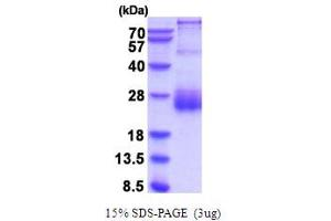 Image no. 1 for serine Peptidase Inhibitor, Kunitz Type, 2 (SPINT2) (AA 28-197) protein (His tag) (ABIN5854267)