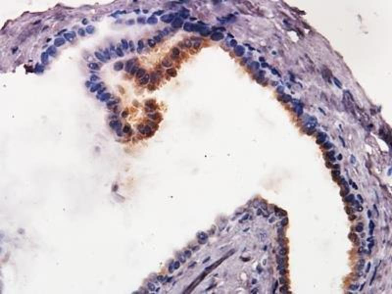 Immunohistochemistry (Paraffin-embedded Sections) (IHC (p)) image for anti-Caspase 9, Apoptosis-Related Cysteine Peptidase (CASP9) antibody (ABIN153015)