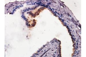 Immunohistochemistry (Paraffin-embedded Sections) (IHC (p)) image for anti-Caspase 9 antibody (Caspase 9, Apoptosis-Related Cysteine Peptidase) (ABIN153015)