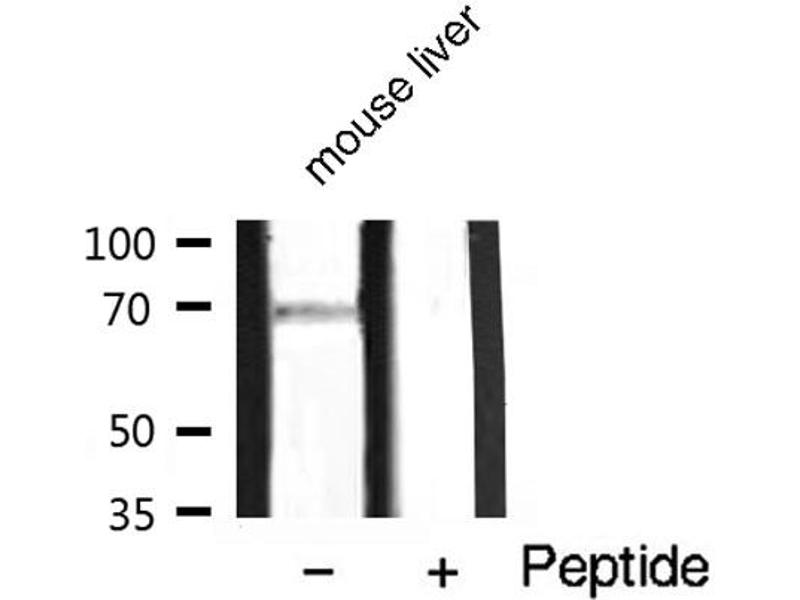 Western Blotting (WB) image for anti-Protein Kinase C, zeta (PRKCZ) (pThr410) antibody (ABIN6256558)