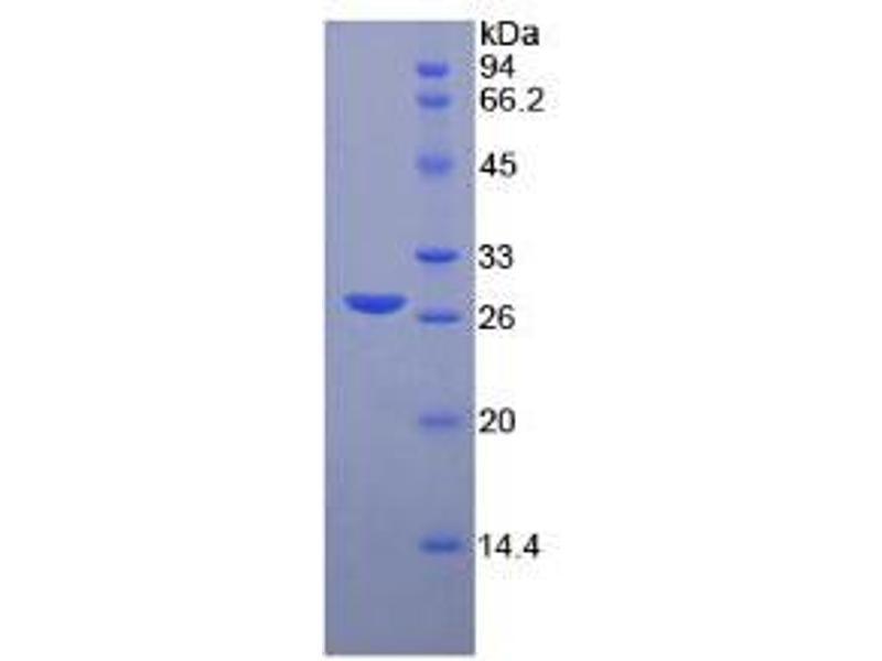Image no. 1 for Matrix Metalloproteinase 2 (MMP2) CLIA Kit (ABIN6720518)