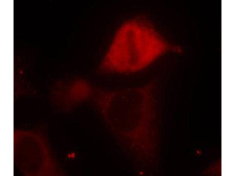 Immunofluorescence (IF) image for anti-MAP2K3 antibody (Mitogen-Activated Protein Kinase Kinase 3) (pSer189) (ABIN1870347)