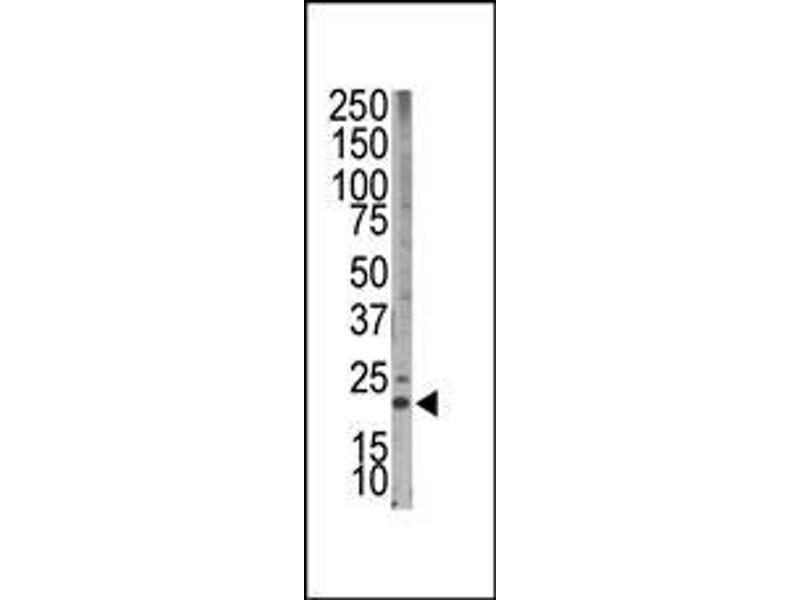 Western Blotting (WB) image for anti-BIM antibody (BCL2-Like 11 (Apoptosis Facilitator)) (AA 130-165) (ABIN388101)