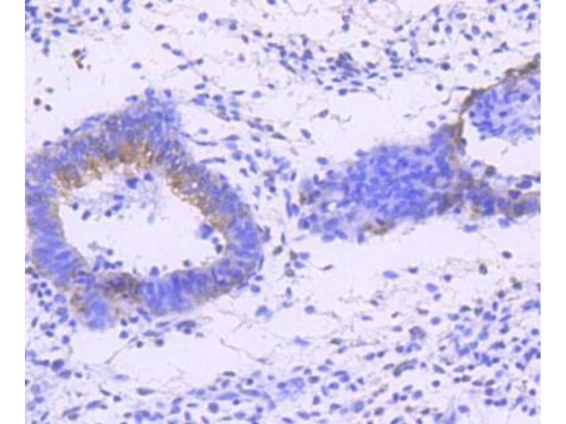 Immunohistochemistry (Paraffin-embedded Sections) (IHC (p)) image for anti-Mitogen-Activated Protein Kinase 8 (MAPK8) antibody (ABIN5950695)