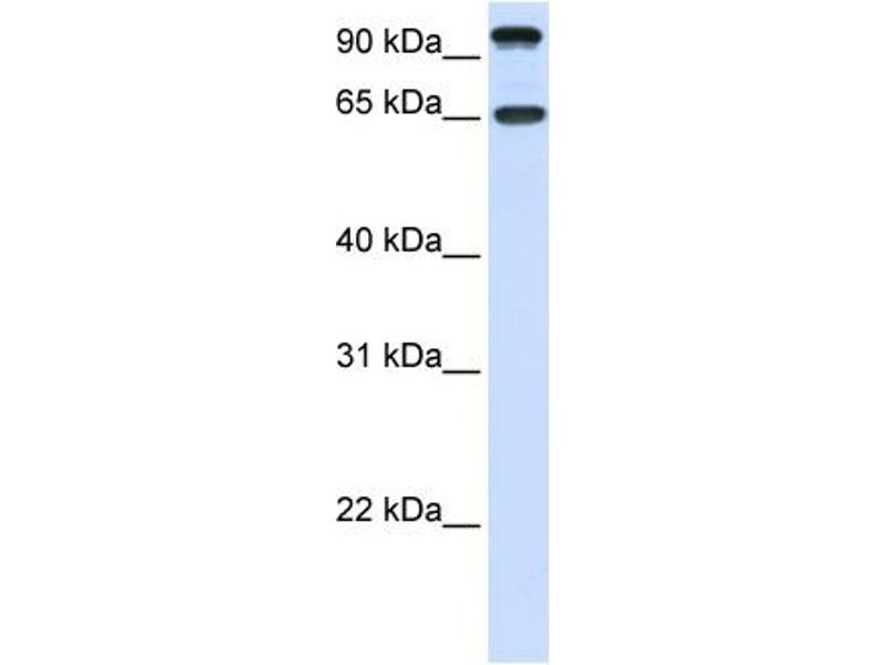 Western Blotting (WB) image for anti-NTRK3 antibody (Neurotrophic tyrosine Kinase, Receptor, Type 3) (C-Term) (ABIN2784511)