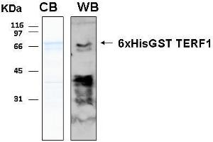 Image no. 1 for Telomeric Repeat Binding Factor (NIMA-Interacting) 1 (TERF1) (AA 1-419) protein (His-GST) (ABIN2703719)