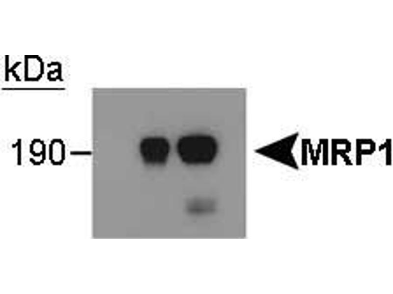 Western Blotting (WB) image for anti-Macrophage Inflammatory Protein Related Protein 1 (MRP1) antibody (ABIN268892)
