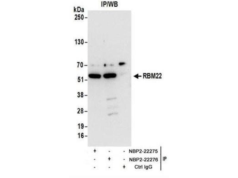 Immunoprecipitation (IP) image for anti-RNA Binding Motif Protein 22 (RBM22) (AA 370-420) antibody (ABIN4349599)