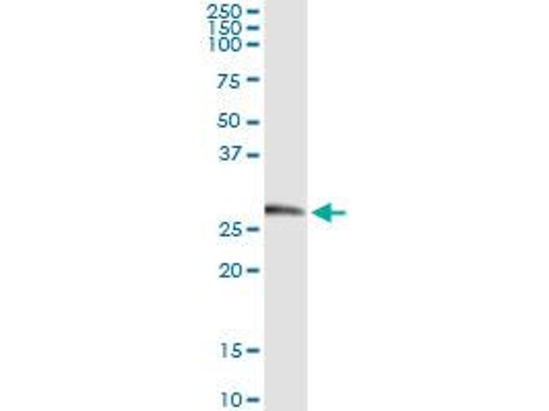 Immunoprecipitation (IP) image for anti-Kallikrein 2 (KLK2) (AA 1-262) antibody (ABIN517352)