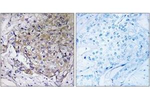 Immunohistochemistry (IHC) image for anti-WAS Protein Family, Member 3 (WASF3) (AA 151-200) antibody (ABIN1535467)