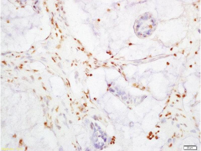 Immunohistochemistry (Paraffin-embedded Sections) (IHC (p)) image for anti-YAP1 antibody (Yes-Associated Protein 1) (AA 230-280) (ABIN701485)