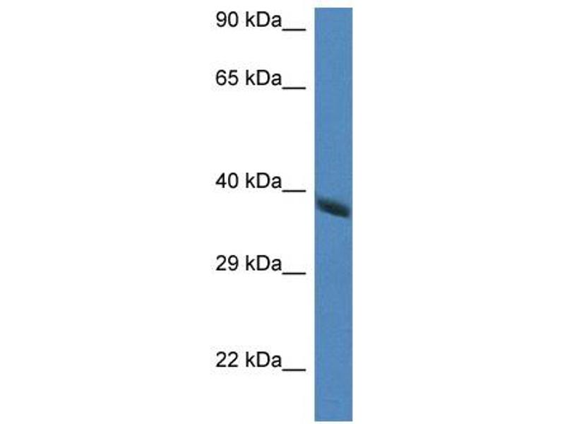 Western Blotting (WB) image for anti-Hydroxyacid Oxidase 2 (HAO2) (Middle Region) antibody (ABIN2776811)