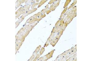 Image no. 3 for anti-Calcitonin-Related Polypeptide beta (CALCB) antibody (ABIN6137856)