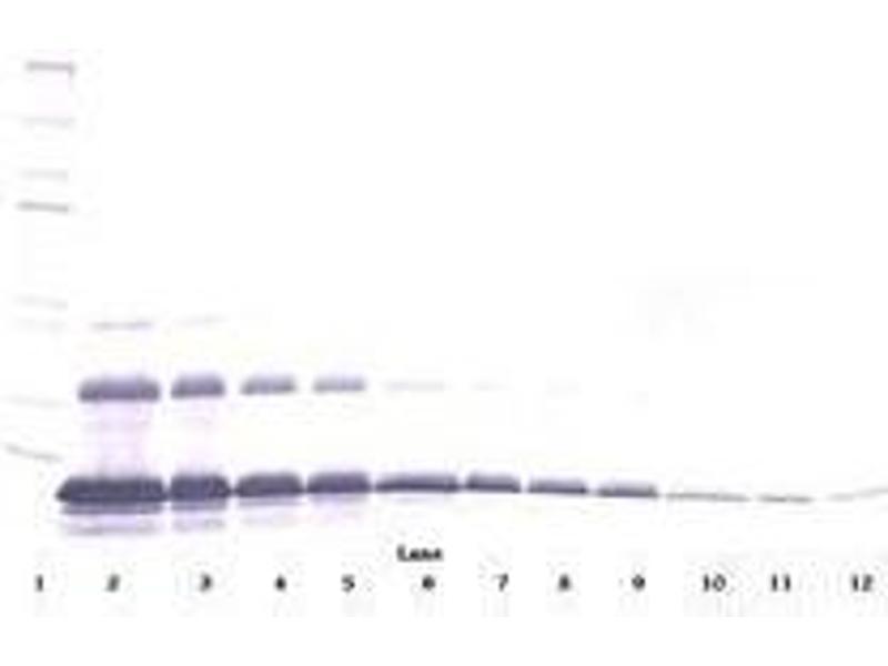image for anti-TNFRSF1A antibody (Tumor Necrosis Factor Receptor Superfamily, Member 1A) (ABIN465074)