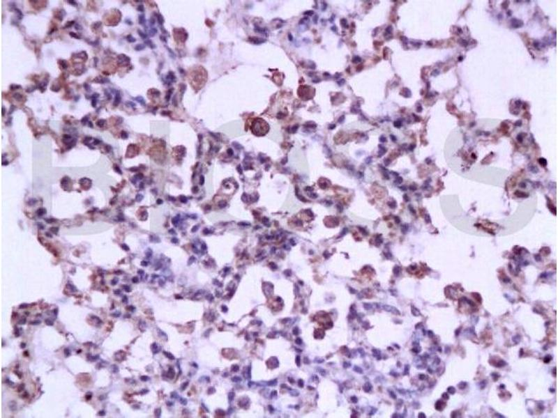 Immunohistochemistry (IHC) image for anti-Signal Transducer and Activator of Transcription 3 (Acute-Phase Response Factor) (STAT3) (AA 260-310) antibody (ABIN738261)