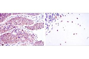 Image no. 2 for anti-Musashi Homolog 2 (Drosophila) (MSI2) antibody (ABIN969295)
