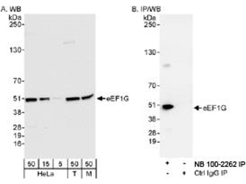 Western Blotting (WB) image for anti-Eukaryotic Translation Elongation Factor 1 gamma (EEF1G) (AA 200-250) antibody (ABIN250648)