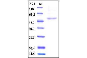 Image no. 1 for Hyaluronan and Proteoglycan Link Protein 1 (HAPLN1) (AA 1-354) protein (His tag) (ABIN2002566)