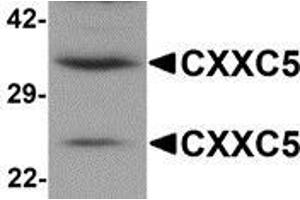 Image no. 1 for anti-CXXC Finger Protein 5 (CXXC5) (N-Term) antibody (ABIN783347)