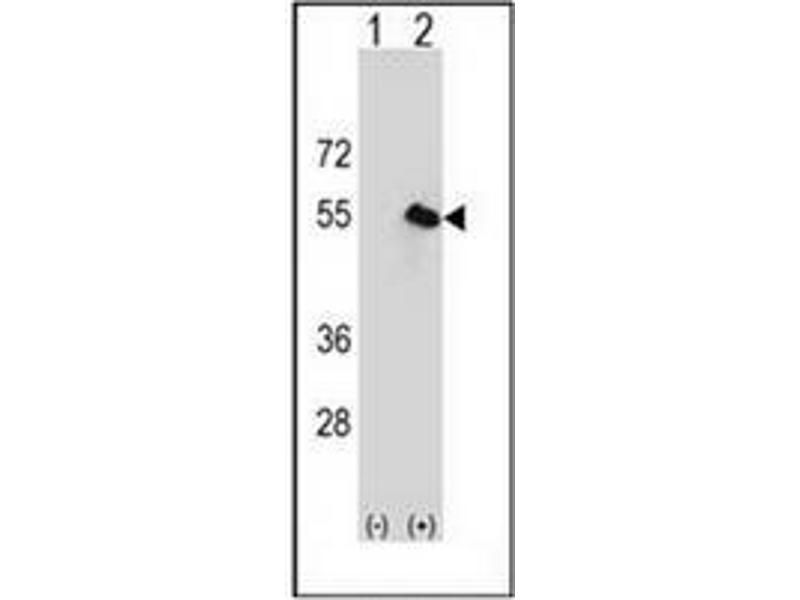 Western Blotting (WB) image for anti-CPN1 antibody (Carboxypeptidase N Subunit 1) (AA 209-240) (ABIN951036)